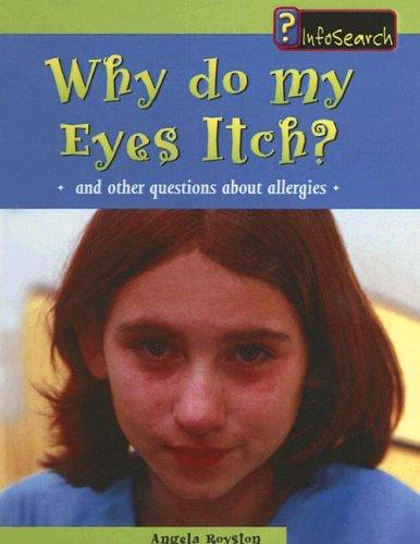 Download Why Do My Eyes Itch?