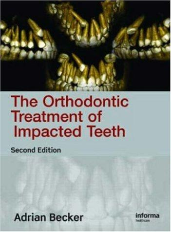 Orthodontic Treatment Impacted Teeth by Adrian Becker