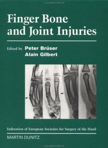 Finger Bone and Joint Injuries by Peter Brüser